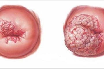 Ra máu ồ ạt, người phụ nữ phát hiện ung thư cổ tử cung