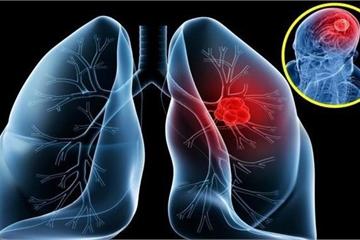 Tưởng cảm lạnh hóa ra ung thư phổi