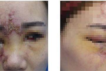 Tiêm filler tại Đài Loan, cô gái suýt mù 1 mắt