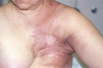 Không muốn bị ung thư vú hãy tránh xa những thói quen này