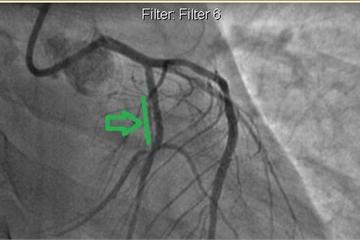 25 tuổi bị nhồi máu cơ tim vì thủ phạm triệu người mê
