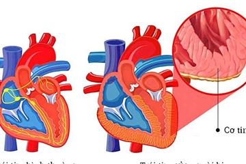 PGS Nguyễn Lân Hiếu: Cách phòng viêm cơ tim như thế nào?