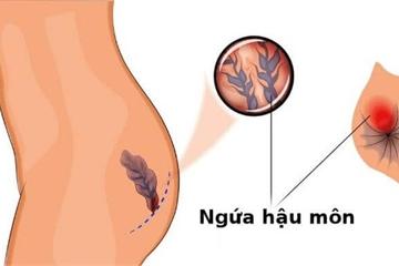 Chuyên gia Bệnh viện Việt Đức: 60% người trưởng thành mắc bệnh trĩ  