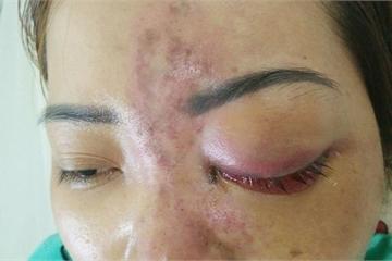 Bé gái 13 tuổi bị mù sau tiêm filler nâng mũi đang điều trị để phục hồi thị lực