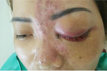 Tiêm filler nâng mũi làm đẹp đón Tết, bệnh nhân 15 tuổi mù mắt