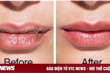 6 cách biến đôi môi bong tróc thành căng mọng, mịn màng