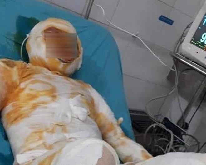 Khởi tố kẻ tưới xăng đốt vợ ở Thái Bình - 1