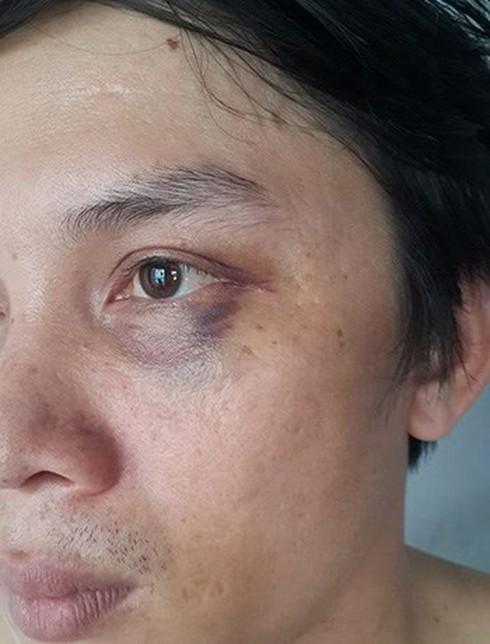 Vụ phóng viên Hà Nội Mới bị đánh tím mắt: Băng ghi âm sẽ phơi bày sự thật? - ảnh 1