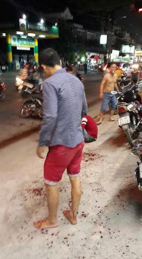 Nam thanh niên bị truy sát, chém đứt lìa tay ở Sài Gòn - ảnh 1