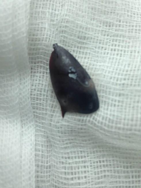 Bác sĩ truy tìm hạt hồng xiêm hóc từ 1 năm trước - ảnh 1