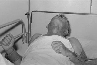 Kém hiểu biết, ông bố trẻ mắc căn bệnh khiến bác sĩ bó tay