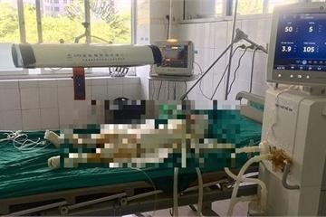 Vụ 5 người bị bỏng xăng nguy kịch ở Mộc Châu: Cháu bé 2 tuổi đã tử vong