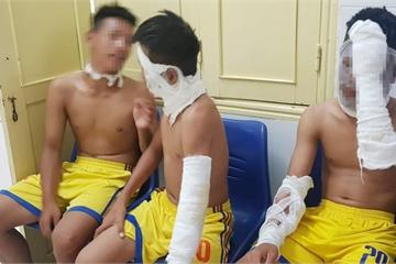 Chùm bóng bay chứa khí hidro phát nổ, 3 cầu thủ Sông Lam Nghệ An bị bỏng