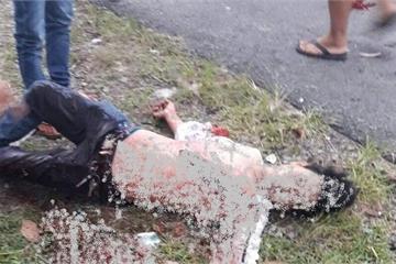 Kiên Giang: Người tử vong, người đứt lìa tay do mâu thuẫn tại quán karaoke