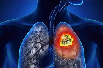 Không chỉ thuốc lá, hút thuốc lào cũng gây ung thư phổi