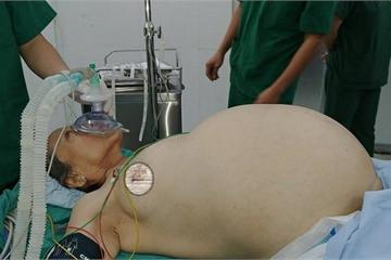 Bệnh viện quận bóc tách khối u buồng trứng nặng 20kg cho cụ bà 70 tuổi