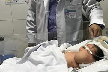 Lần đầu tiên cứu sống bé sơ sinh tắc đường thở khi vừa ra khỏi bụng mẹ