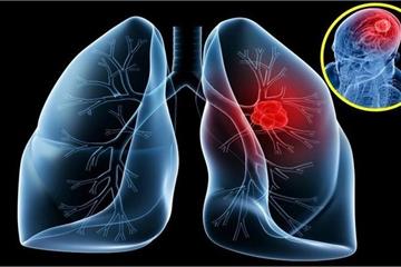 Tầm soát ung thư phổi bằng chụp CT liều thấp
