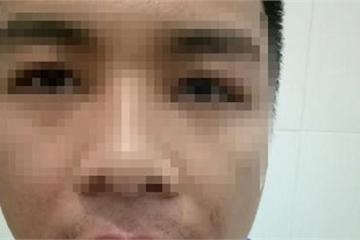 Hà Tĩnh: Khởi tố vụ thầy giáo ném thanh sắt làm nhân viên tòa án gãy 5 răng