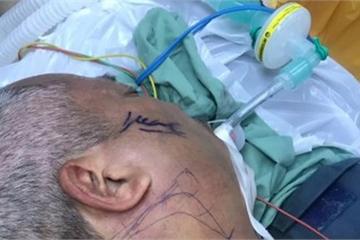 Đắk Lắk: Leo lên hàng rào, ông lão 61 tuổi bị cây sắt cắm từ cổ qua xương hàm