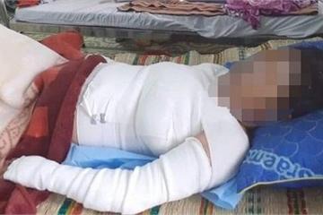 Mổ cứu thai nhi của sản phụ tự thiêu do ghen tuông ở Kon Tum