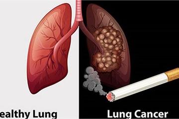 Những chất nào trong thuốc lá gây ung thư