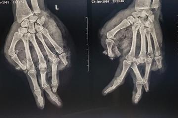 Ăn lẩu bằng bếp gas mini, nam thanh niên bị thương nặng ở tay