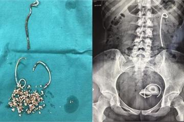 Đi đái rắt suốt 5 năm do bỏ quên stent trong niệu đạo