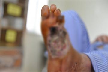 Cả bàn chân chảy dịch hoại tử do biến chứng đái tháo đường