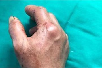 Nối thành công cẳng tay cho bệnh nhân bị đứt rời do máy tuốt lúa
