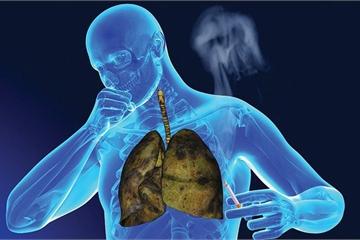 Thuốc lá thủ phạm hàng đầu gây ung thư phổi