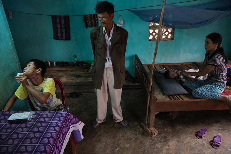 Nỗi đau da cam Việt Nam trong mắt nhiếp ảnh gia Mỹ - ảnh 3