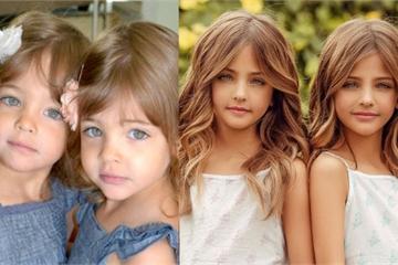 Cặp song sinh được mệnh danh đẹp nhất thế giới, 6 tháng tuổi đã nhận hợp đồng quảng cáo