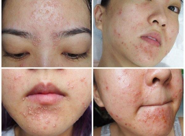 Các loại mỹ phẩm trôi nổi rất dễ gây dị ứng, gây hại cho làn da của bạn.