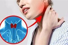 Thu hồi thuốc trị rối loạn tuyến giáp