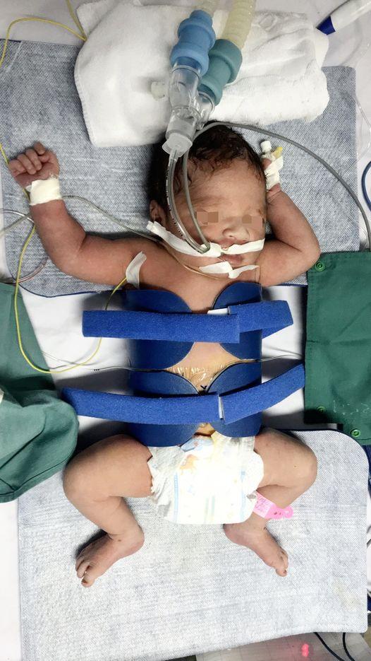 Sức khỏe - Cháu bé sơ sinh nguy kịch, não thiếu oxy được cứu sống thần kỳ