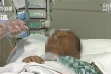 Suýt mất mạng vì không nghe vợ, cố nặn mụn ở vùng 'tam giác tử thần'