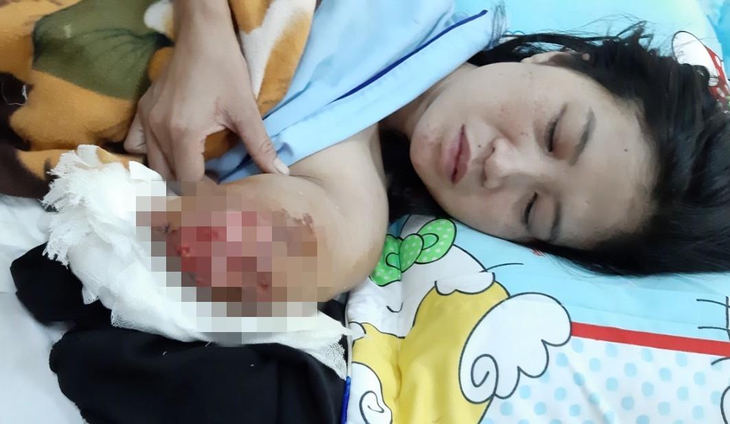 Cô giáo bị tai nạn phải cắt bỏ cánh tay được luân chuyển công tác - Ảnh 1.