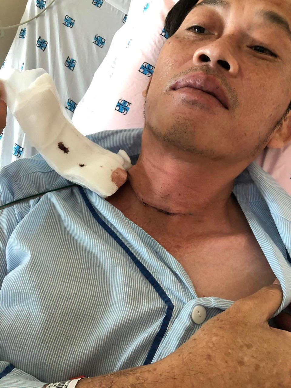 ĐỘC QUYỀN: Hoài Linh tiết lộ phải phẫu thuật K tuyến giáp cách đây vài tháng ảnh 1
