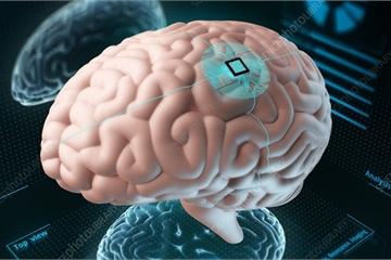 Nga mở trung tâm nghiên cứu cấy chip vào người