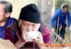 Forgotten leprosy patients