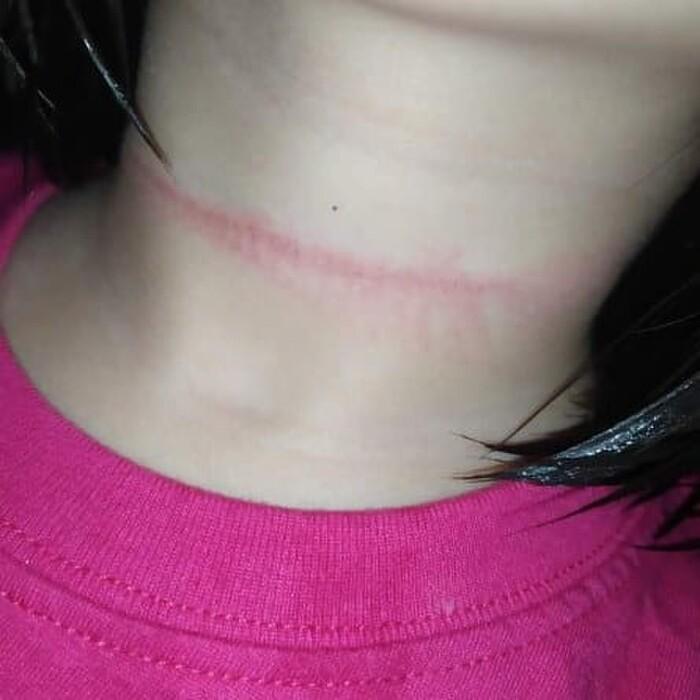 Bé gái 4 tuổi suýt mất mạng khi cố thực hiện thử thách treo cổ trên TikTok Ảnh 2