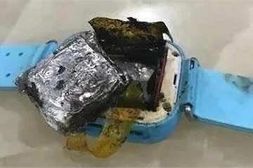 Smartwatch phát nổ trên tay bé gái 4 tuổi