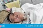 Người phụ nữ hôn mê 3 tháng chưa tỉnh sau khi nâng mũi