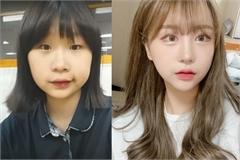 Hot girl Hàn Quốc phẫu thuật thẩm mỹ toàn cơ thể